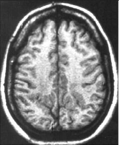 Bilateral parasagittal parieto-occipital polymicrogyria